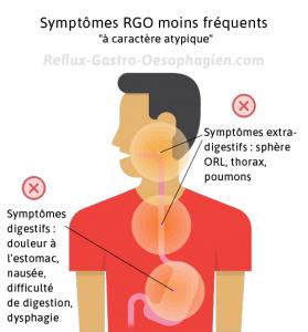 Symptômes du RGO (reflux gastro oesophagien)